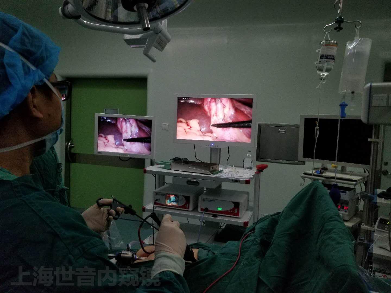 【腹腔镜篇】胆囊切除关键解剖结构
