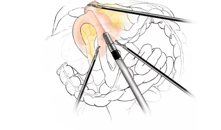 【腹腔镜篇】右半结肠切除术
