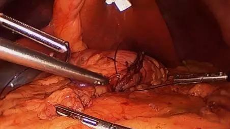 【腹腔镜篇】减重手术