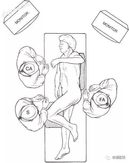 【腹腔镜篇】脾切除手术的技巧