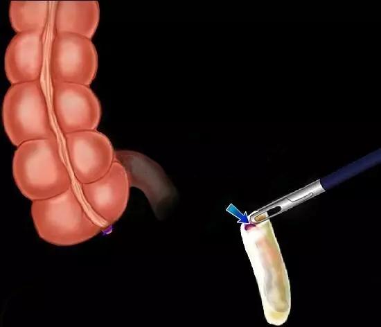 【腹腔镜篇】阑尾切除术