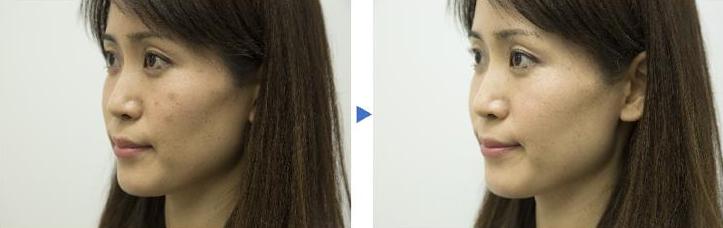 松下和Maison高丝定制雪美镜,帮助顾客定制妆容!