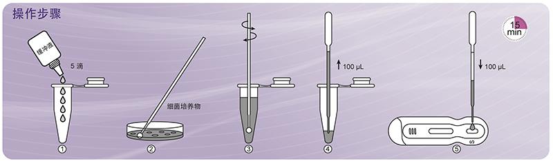 NG-Test® CARBA 5 碳青霉烯酶检测试剂盒(胶体金免疫层析法)