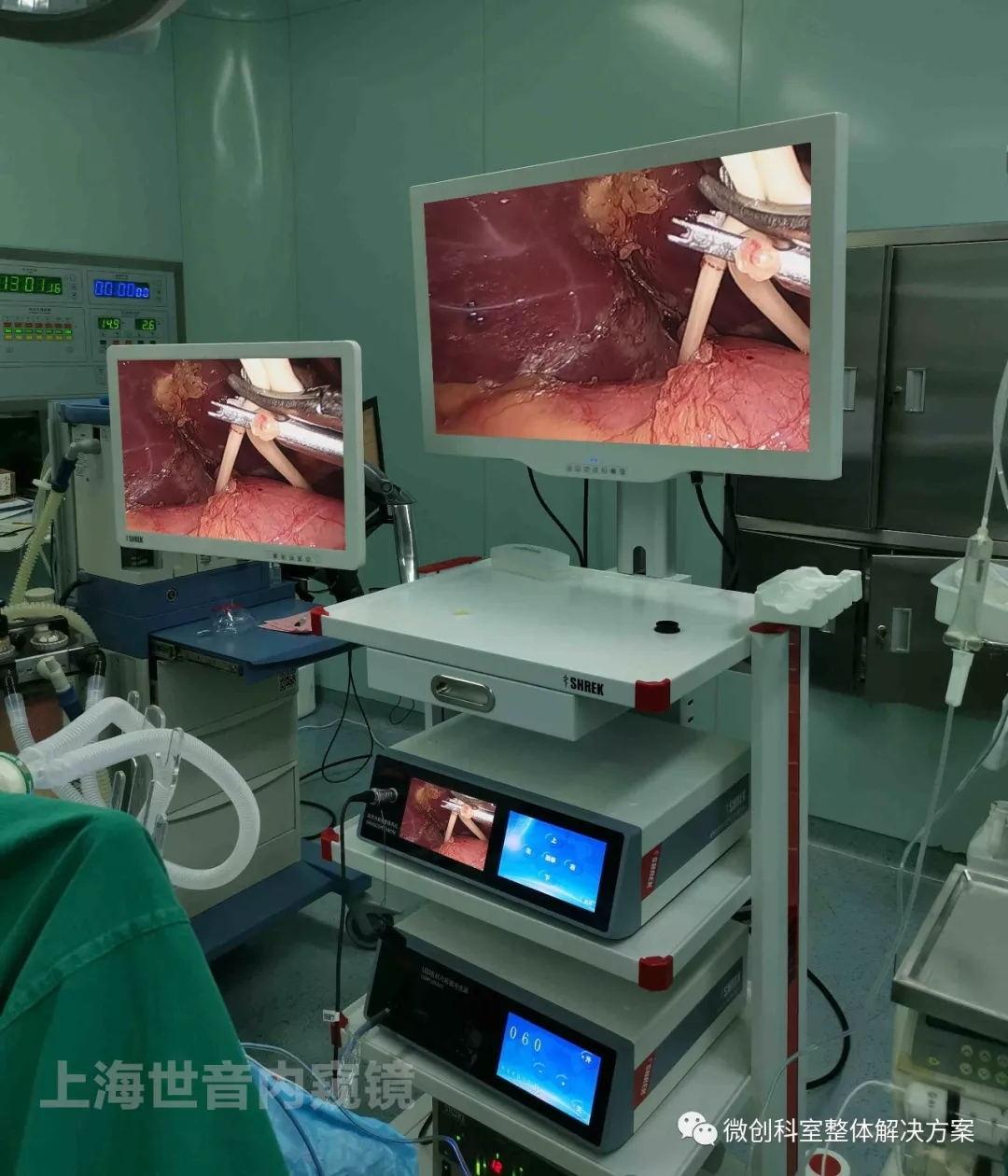 【腹腔镜篇】肝切除术入路