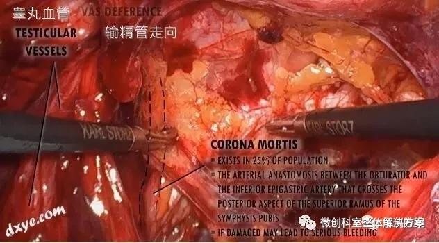 【腹腔镜篇】腹股沟结构解剖