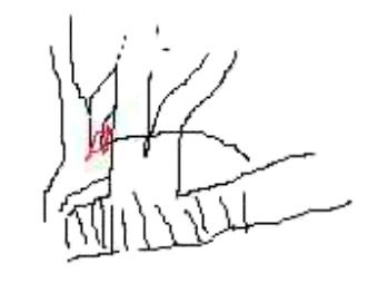 【腹腔镜篇】肺叶切除术体会