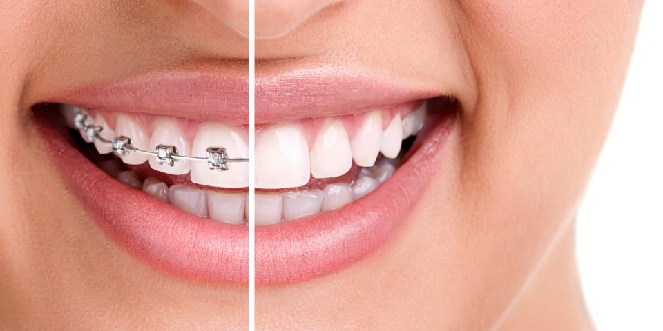 在深圳牙齿矫正时金属自锁牙套有哪些优势