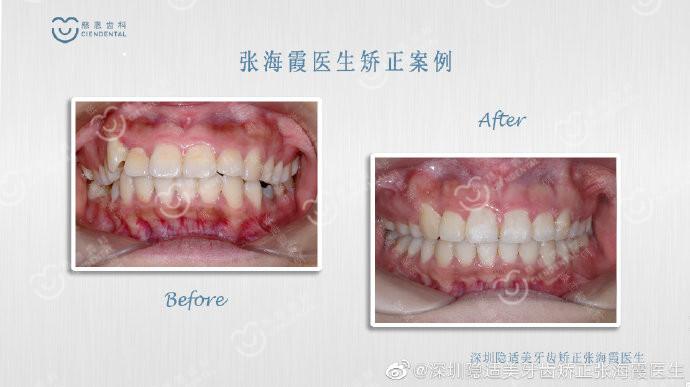 骨性二类龅牙矫正