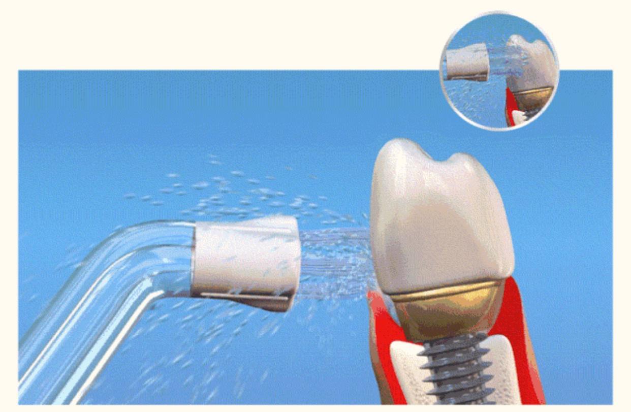 科普:冲牙器到底值不值得买?