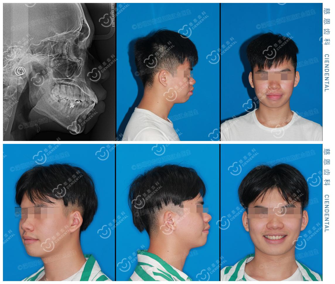 深圳牙齿矫正—骨性前突龅牙不手术纯正畸,效果=换头?(内附案例)