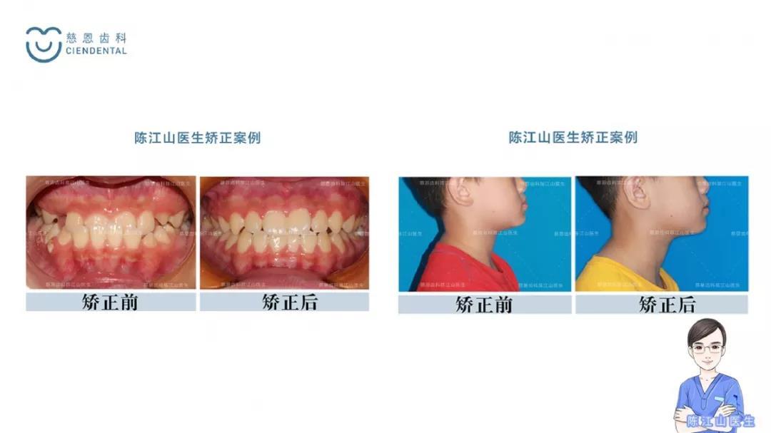 慈恩齿科丨早期牙齿矫正中心正式成立!