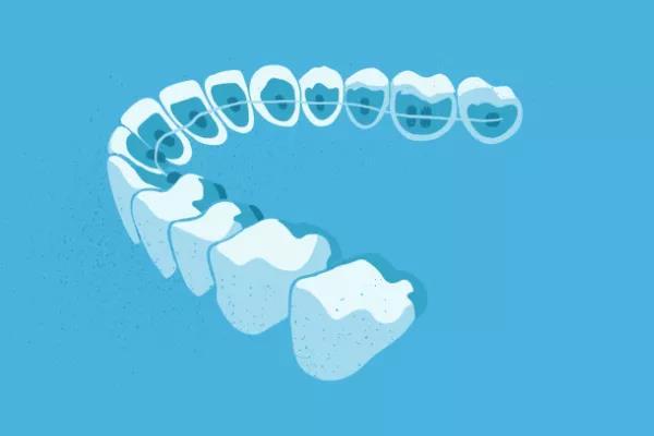牙齿矫正越贵,效果越好吗?