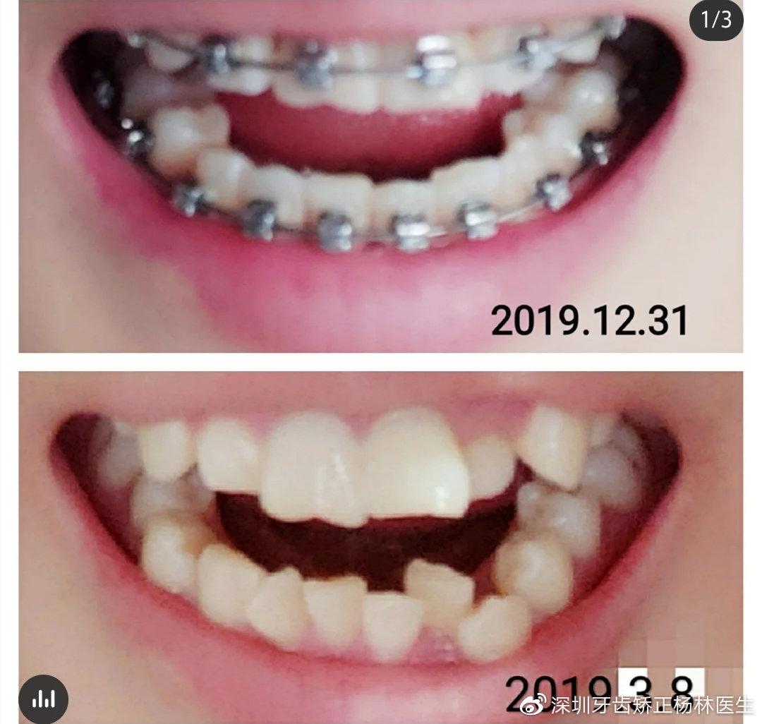 深圳牙齿矫正 患者日记:牙齿矫正一周年啦~