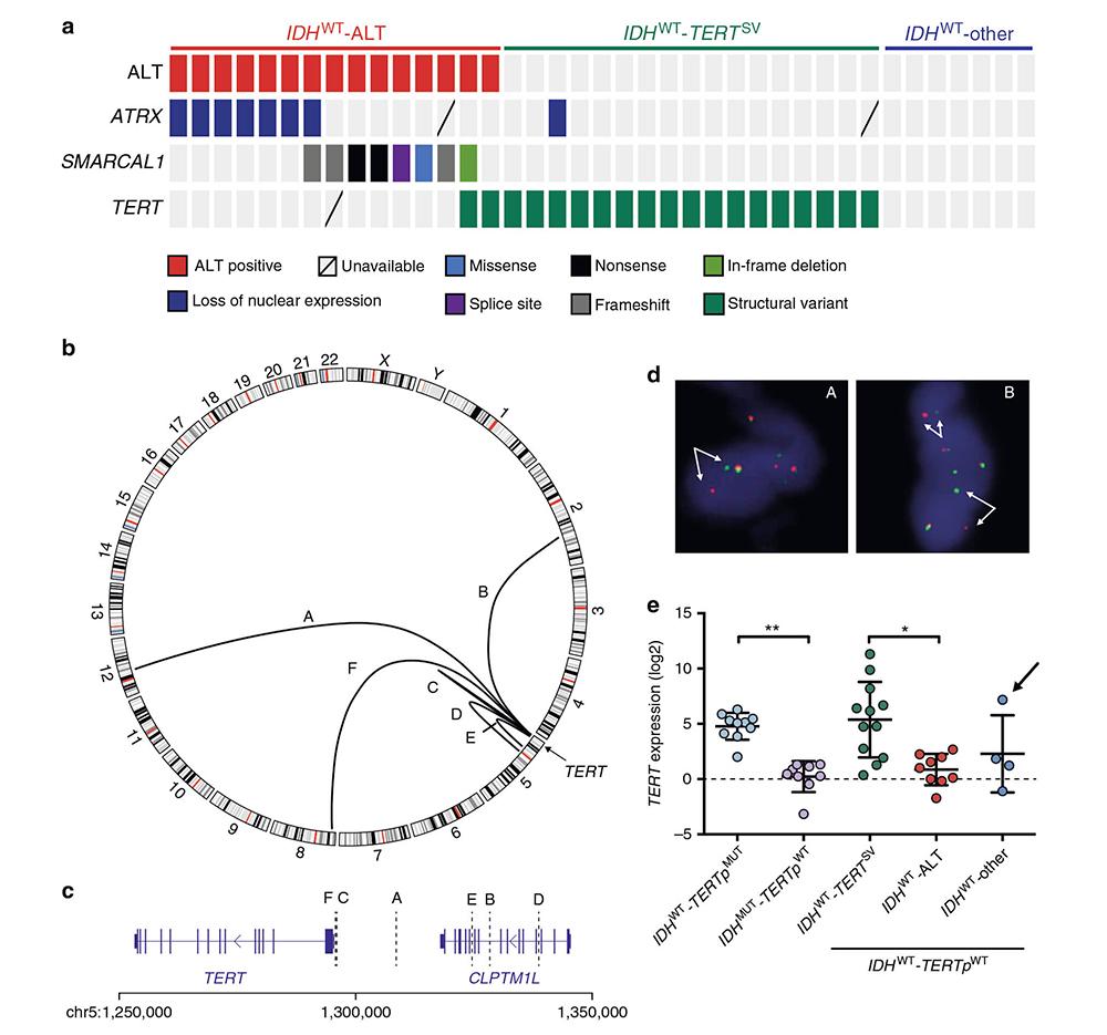 Scientists of Genetron Health Again Define Key Pathogenic Gene for Malignant Gliomas