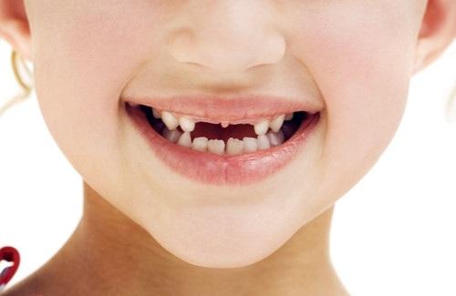 深圳牙科医院讲解儿童龋齿的类型