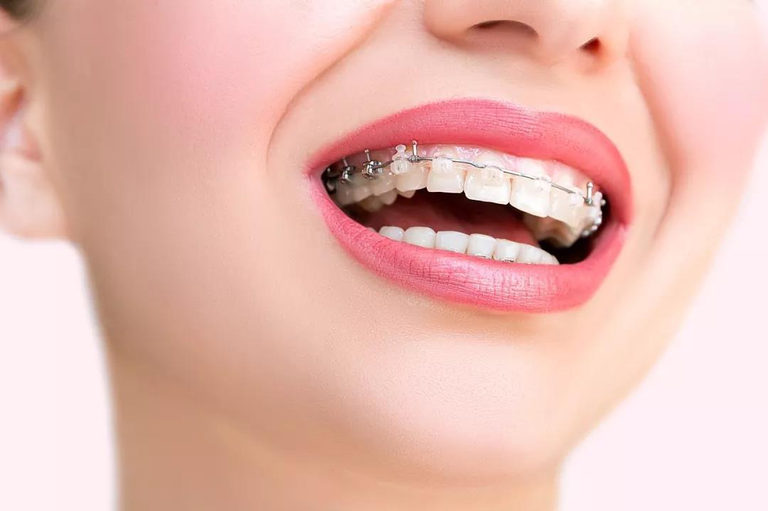 哪些情况下需要到深圳牙科医院矫正牙齿?