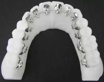 牙套汇总大全,哪种牙套更适合你?