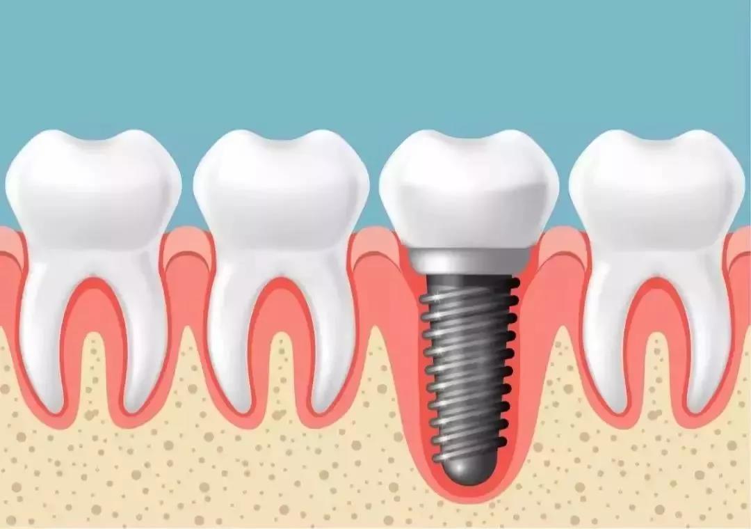 什么是种植牙?看完这篇你就全明白了