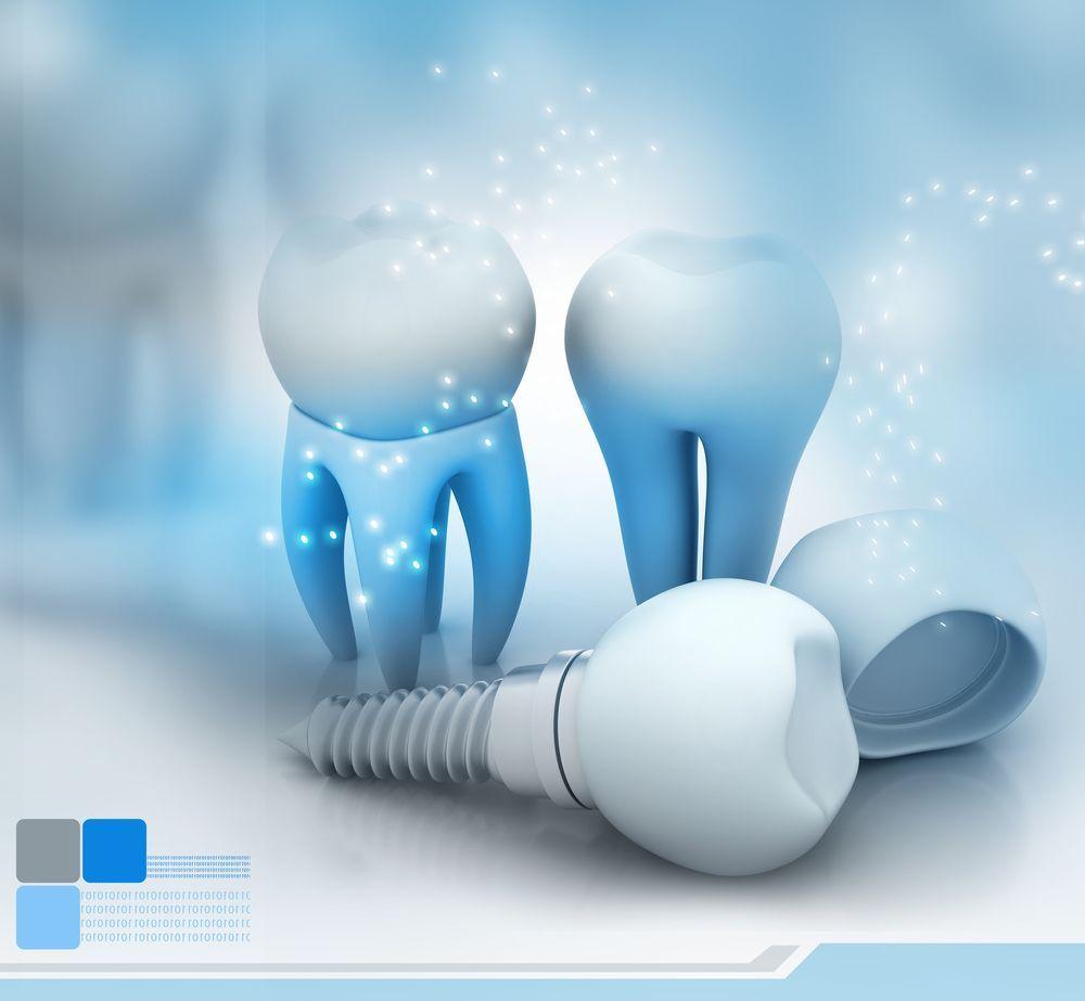 在深圳牙科医院做种植牙需要注意什么
