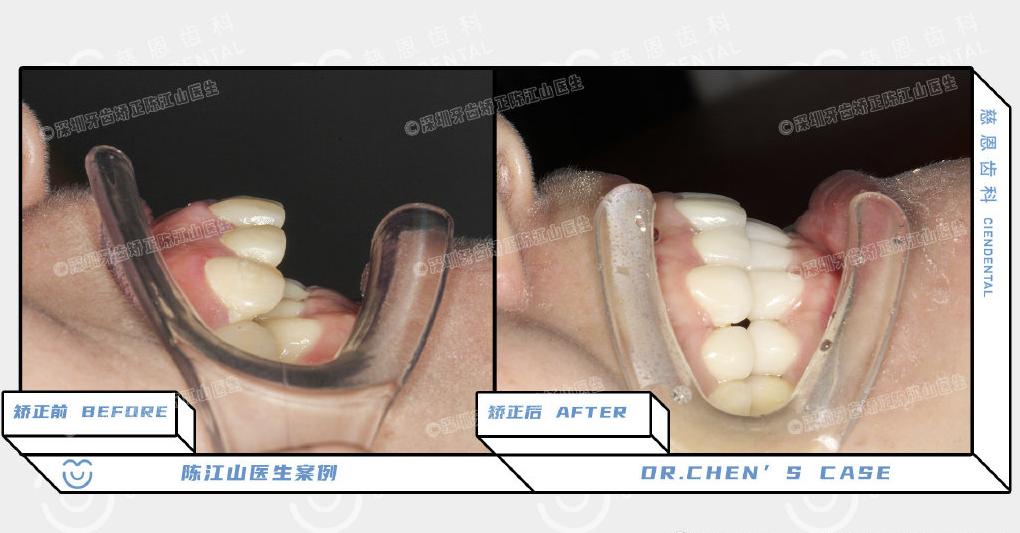 深圳牙齿矫正丨骨钉一打,审美线可安排!?