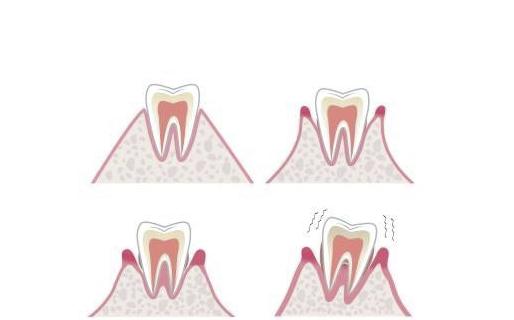 深圳牙齿矫正:我不敢矫正牙齿,怕有副作用!?