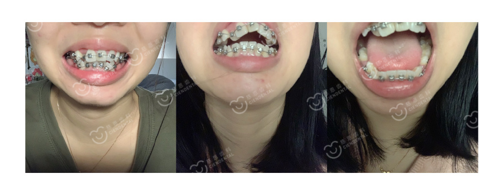 深圳牙齿矫正丨拥挤不齐、嘴突、没下巴一次解决是种什么体验?!