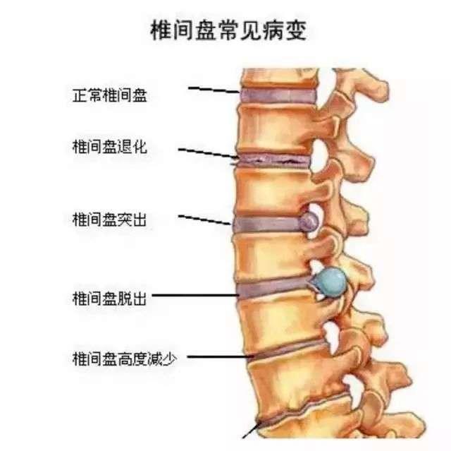 腰椎理疗私教