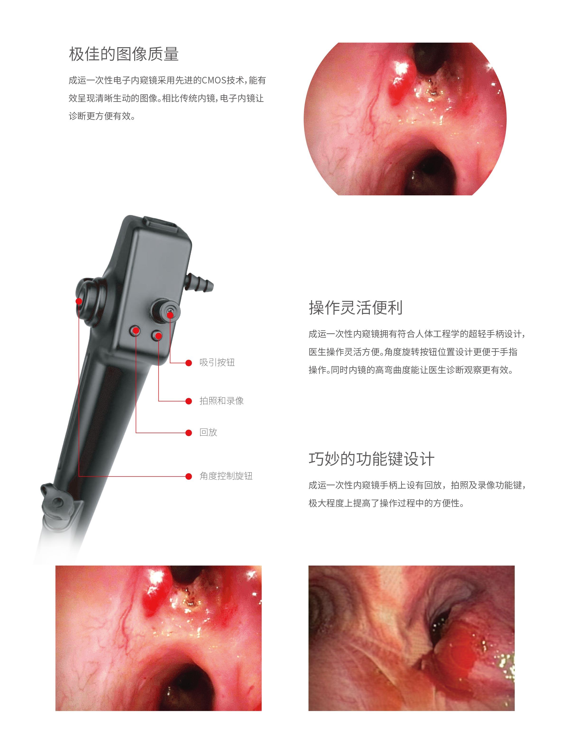 一次性使用内窥镜 VEP-200即将上市