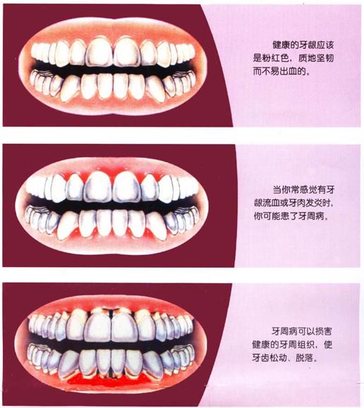 """深圳牙齿矫正丨科普:关于""""牙周病与矫正""""的真相,全都在这里!"""
