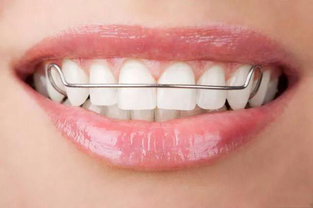 深圳牙齿矫正 |  你知道吗,牙齿矫正居然还会复发?!