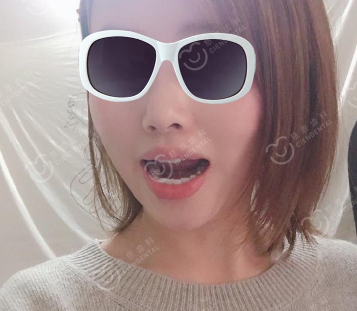 """深圳牙齿矫正—才戴了7副隐适美牙套,这凸嘴的""""神奇""""变化我爱了!"""