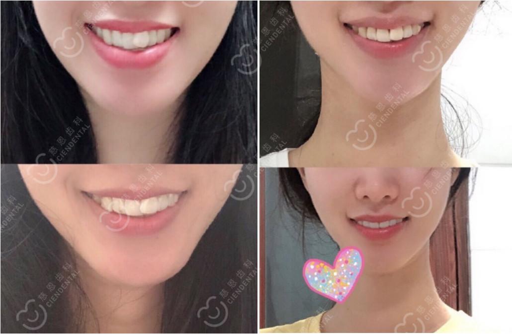 深圳牙齿矫正丨患者投稿:漂亮预警!你整牙变美潜力有多大?