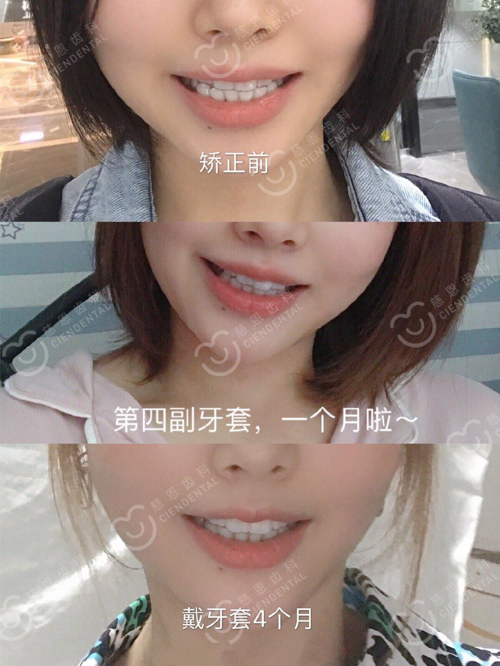 深圳牙齿矫正 | 患者投稿:那些在矫正牙齿的人,经历了什么?