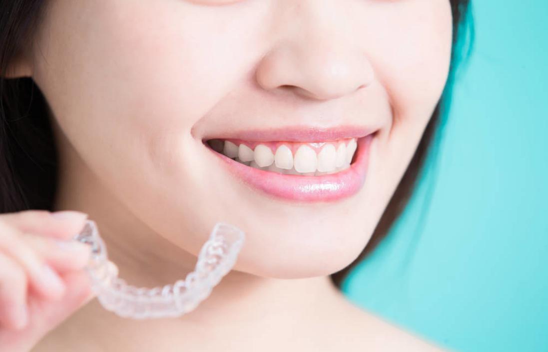 深圳牙齿矫正丨关于隐形牙套,你是否有很多问号???