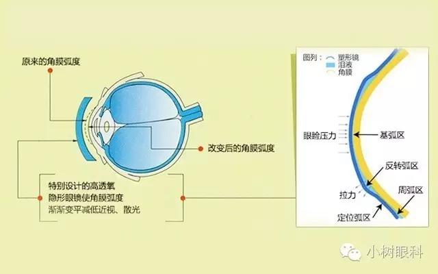 角膜塑形镜就是OK镜吗?