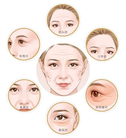 99%的人不知道#瘦脸针#,还有这些作用!