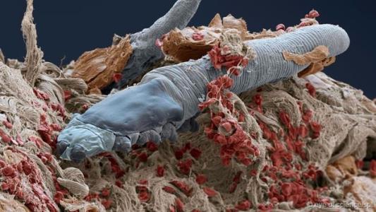 螨虫如何感染,如何治疗?