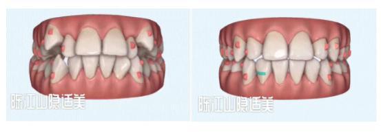 深圳牙科医院