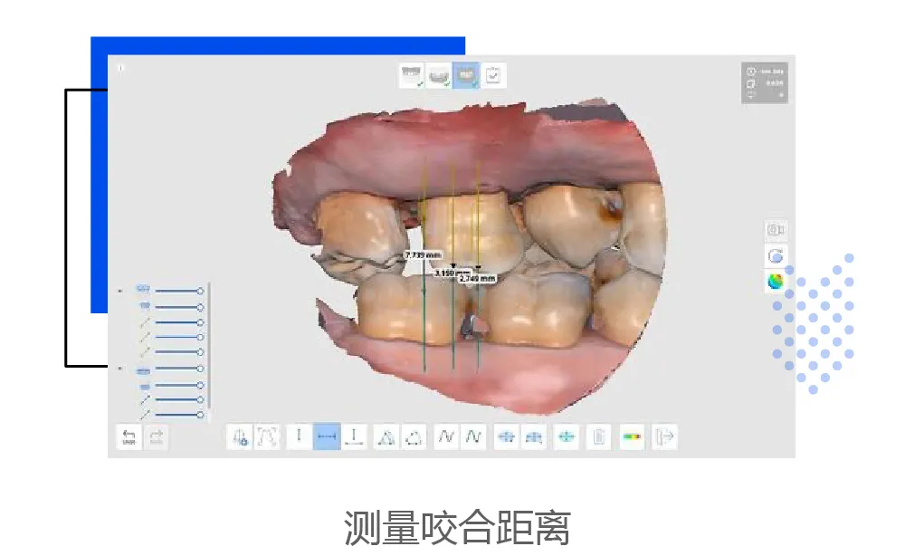 【病例报告】数字化印模技术在高嵌体修复病例中的应用