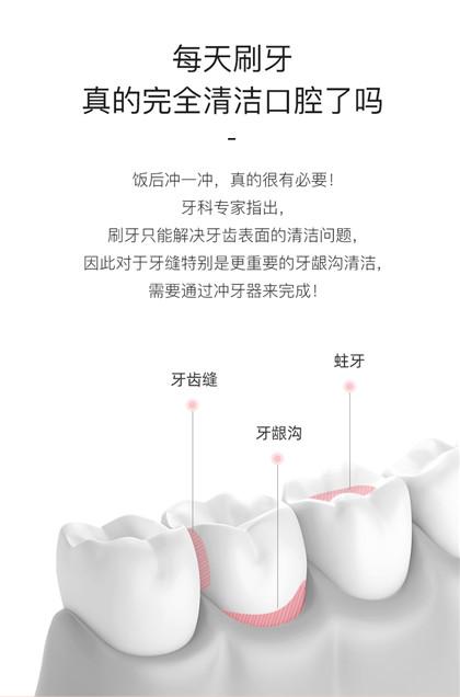 拜尔电动冲牙器_便携洗牙器