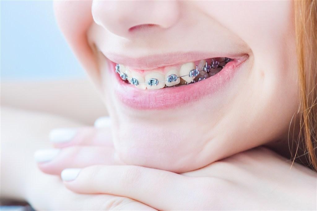 在深圳牙齿矫正时为什么需要挂橡皮筋呢?