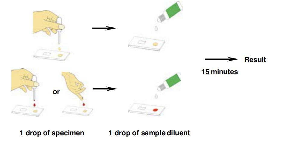 TB IgG/IgM Combo Rapid Test