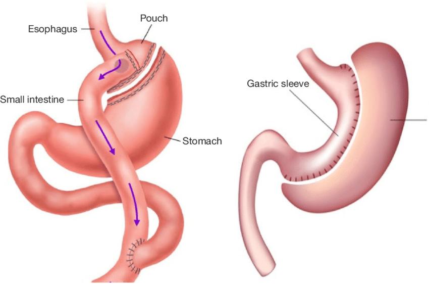 杨天真上热搜 那些为了救命选择「切胃」的糖尿病患者