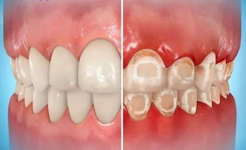 深圳牙齿矫正期间刷牙