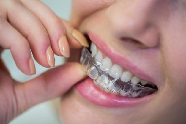深圳隐形牙齿矫正
