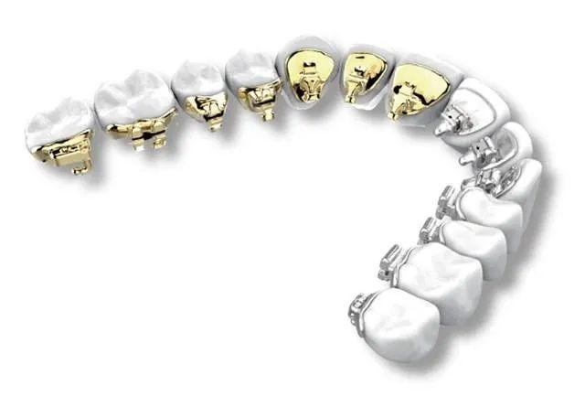 深圳牙齿矫正的费用