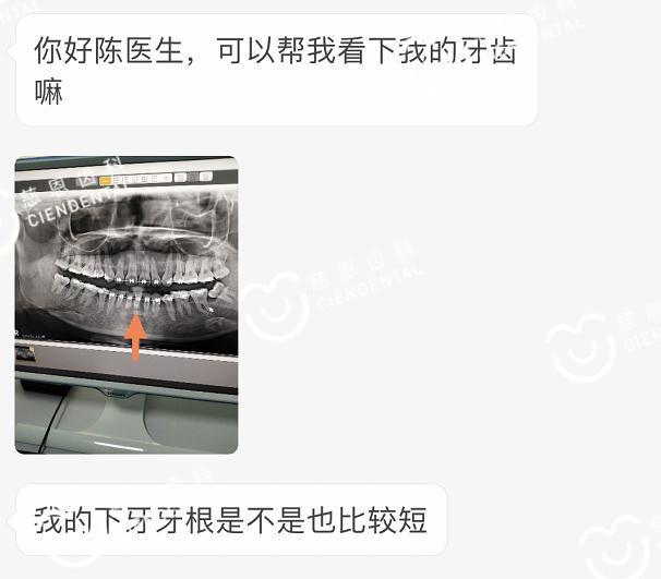 牙根短能在深圳牙齿矫正吗