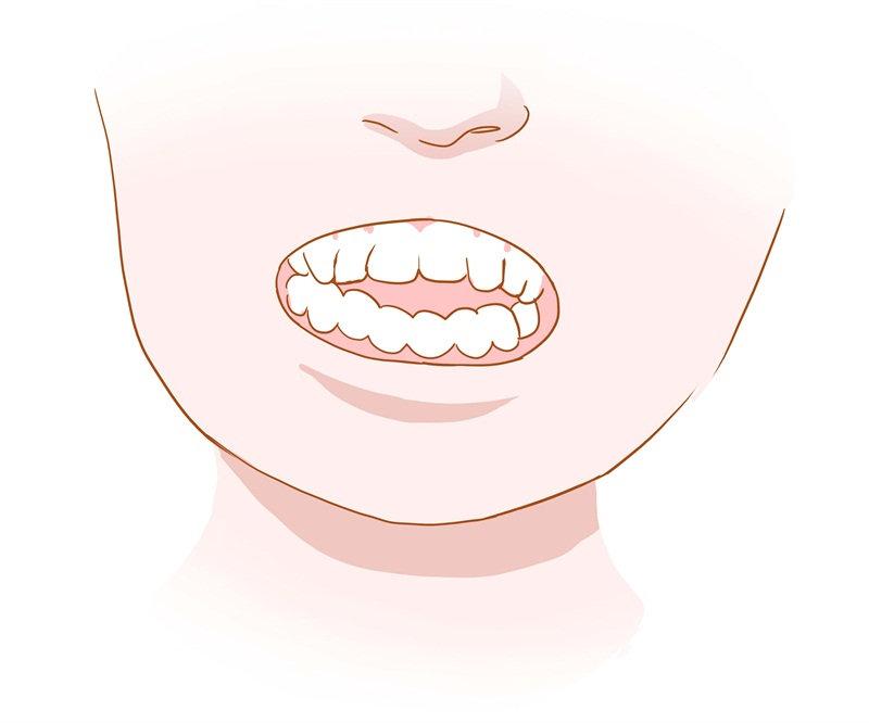 深圳牙齿矫正科普