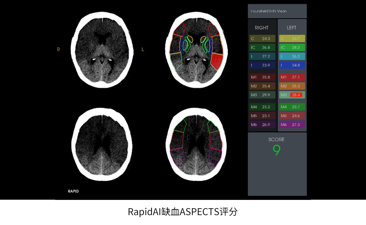 卒中救治2.0时代|泓懿医疗携手GE医疗,共创脑卒中AI诊断新里程