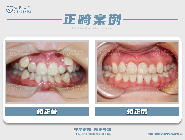 陈江山医生牙齿矫正案例